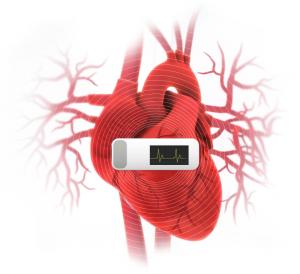 Diagnostic des anomalies du rythme cardiaque